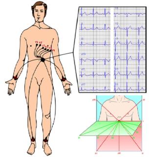 Боль при выдохе в грудной клетке посередине