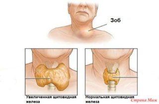 Давит в грудине посередине, тяжело дышать как ком в горле, причины и что делать