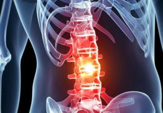 Нейростимуляция спинного мозга