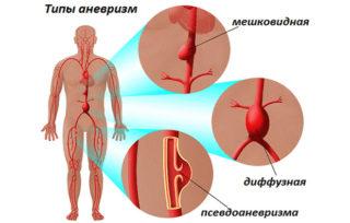 Почему сводит мышцы: 5 проблем и их лечение