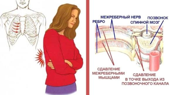 Межреберная невралгия симптомы и лечение на правой стороне со спины