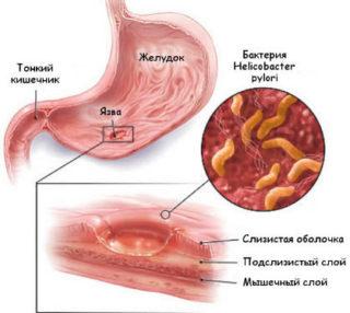 Ощущение удара в грудной клетке