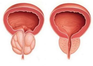 Болит поясница причины у мужчин лечение