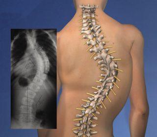Деформация грудной клетки: степени, причины, лечение. Воронкообразная и килевидная деформация грудной клетки
