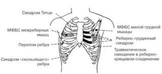 Резкая боль в левой или правой части грудной клетки