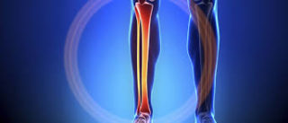 Отек костного мозга позвоночника: ? что это такое, причины и лечение