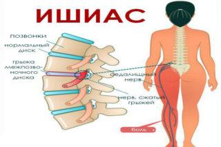 Боль в пояснице справа, слева, отдает в ногу, острая, тянущая, сильная, после сна, при наклоне, отдает в пах