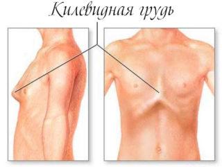 Почему грудная клетка выпирает вперед у ребенка, подростка, женщин и мужчин и что с этим делать