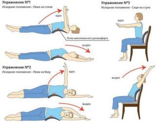 Упражнения при межреберной невралгии слева