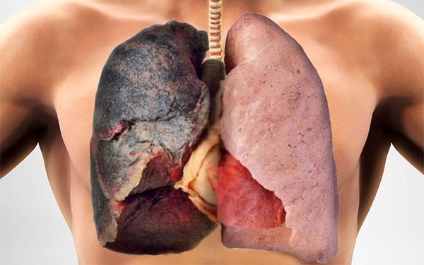 После курения болит грудная клетка: что это значит и что делать