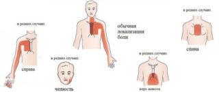 Распирающая боль в грудной клетке посередине