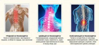 Горит спина - причины и лечение.