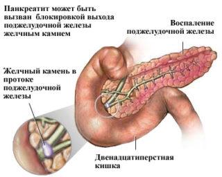 Болят ребра с двух сторон при нажатии