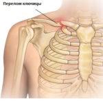Почему болит ключица слева около шеи и плечо, что с этим делать