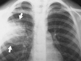 Простуда болит грудная клетка что делать
