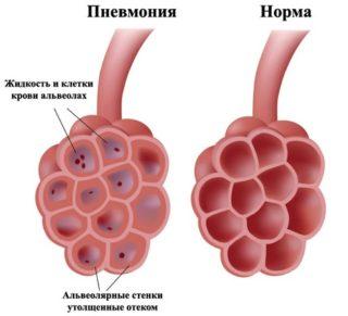 Боль грудной клетки спереди