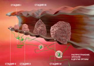 Расшифровка диагноза рак молочной железы: классификация tnm