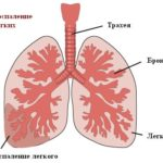 Межреберная невралгия на правой стороне со спины или спереди: симптомы и лечение