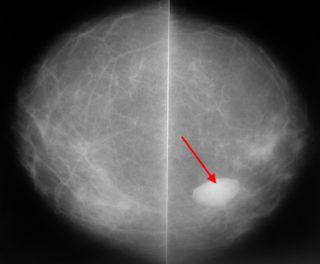 Маммография результаты фиброзно жировая инволюция