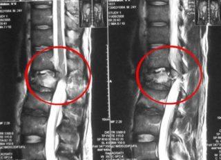 Отек спинного мозга позвоночника последствия