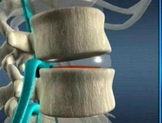 К чему может привести защемление нерва в пояснице