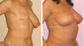Восстановление груди после мастэктомии: какие лучше импланты ставить