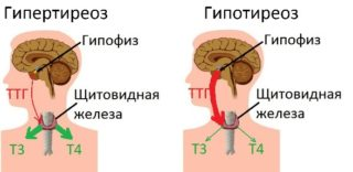 Что такое фиброза в молочной железе