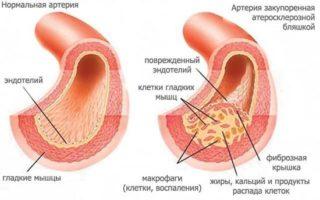 Синдром позвоночной артерии: код по МКБ-10, симптомы, лечение, прогноз