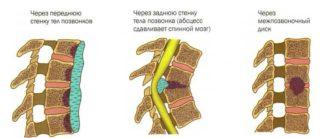 Почему боль в пояснице отдает в ягодицу и ногу (левую, правую): что это, причины у женщин и мужчин, диагноз, чем лечить