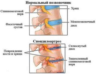 Болит спина с правой стороны выше поясницы