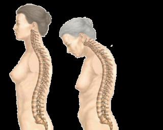 Болезнь Бехтерева у Женщин: симптомы и лечение, прогноз для жизни