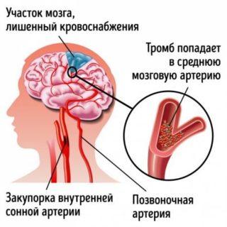 Тромбоз позвоночной артерии
