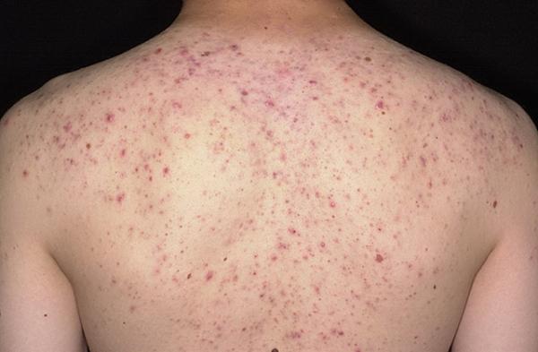 Прыщи на спине у ребенка или подростка: причины и лечение сыпи