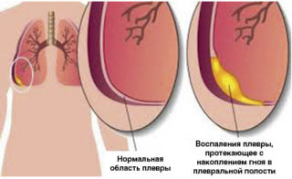 Боль под левой лопаткой сзади со спины