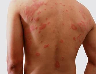 Аллергический дерматит на спине фото