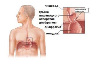 Что находится с правой стороны грудной клетки