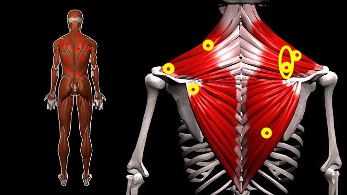 Жгучая боль в спине между лопатками причины