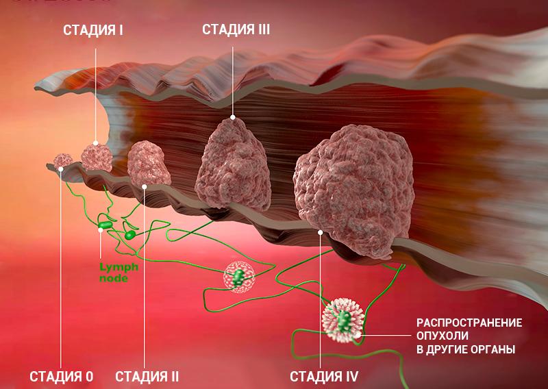 2 стадия рака молочной железы прогноз