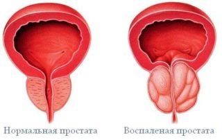 Секс при боли в спине