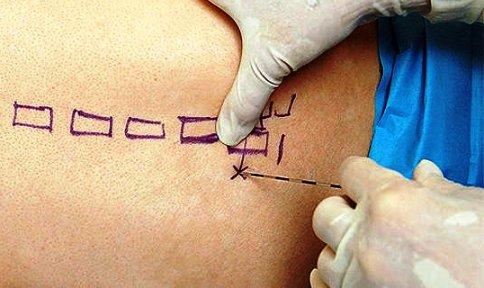 Блокада в медицине и неврологии: что это такое, лидокаиновая блокада нерва и триггерных точек, процедура укола в шею, виды