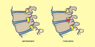 Почему болит спина после сна в области почек? Почему после сна болит спина и поясница?