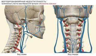 Давление при шейном остеохондрозе: причины и лечение