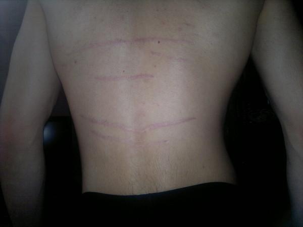 Как убрать растяжки на спине