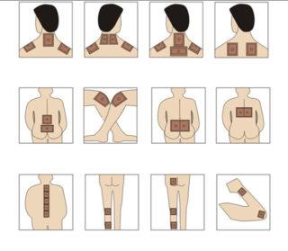 Какой пластырь от боли в спине лучше (перцовый, китайский, вольтарен, нанопласт)