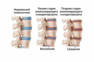 Боль в правом боку ниже поясницы у мужчин
