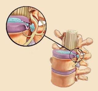 Размер грыжи позвоночника для операции