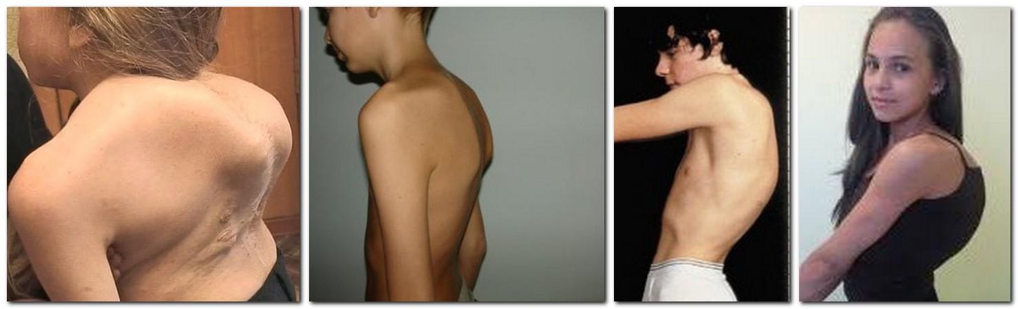 Как избавиться от горба на спине