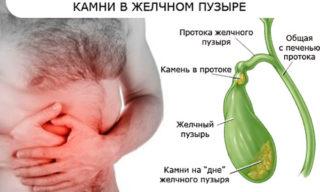 Болит правый бок под ребрами сзади спины