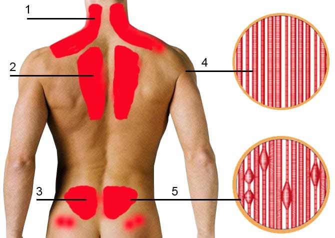 Пациент с острой болью в нижней части спины в общей практике