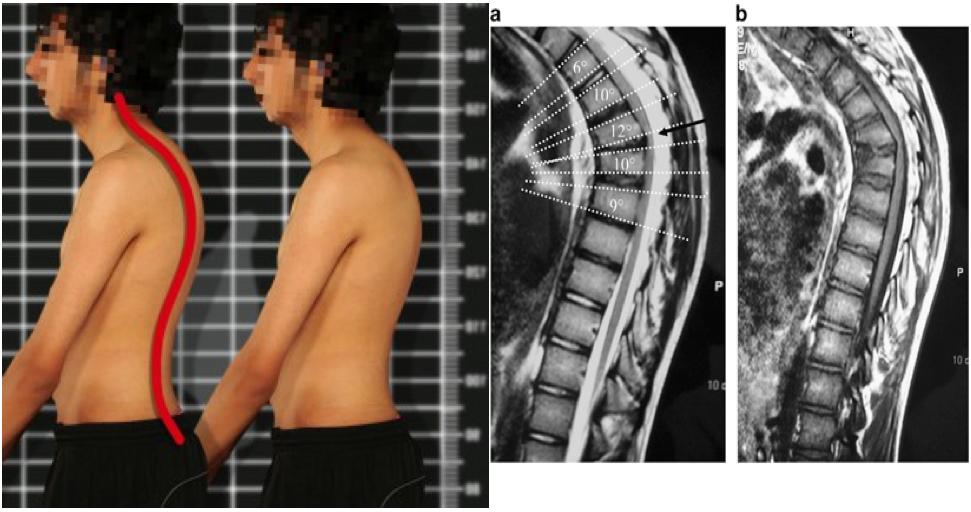 Болезнь спины шейермана мау